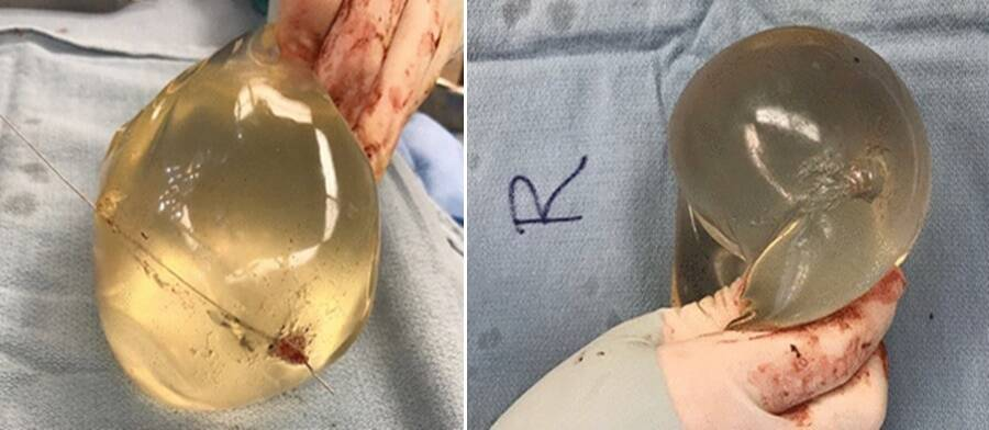 Both breast implants show that the bullet had shot through them.