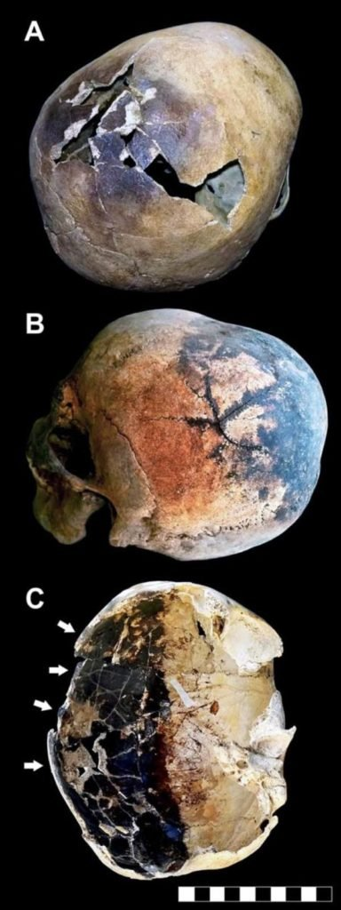 Some of the fractured skulls studied.